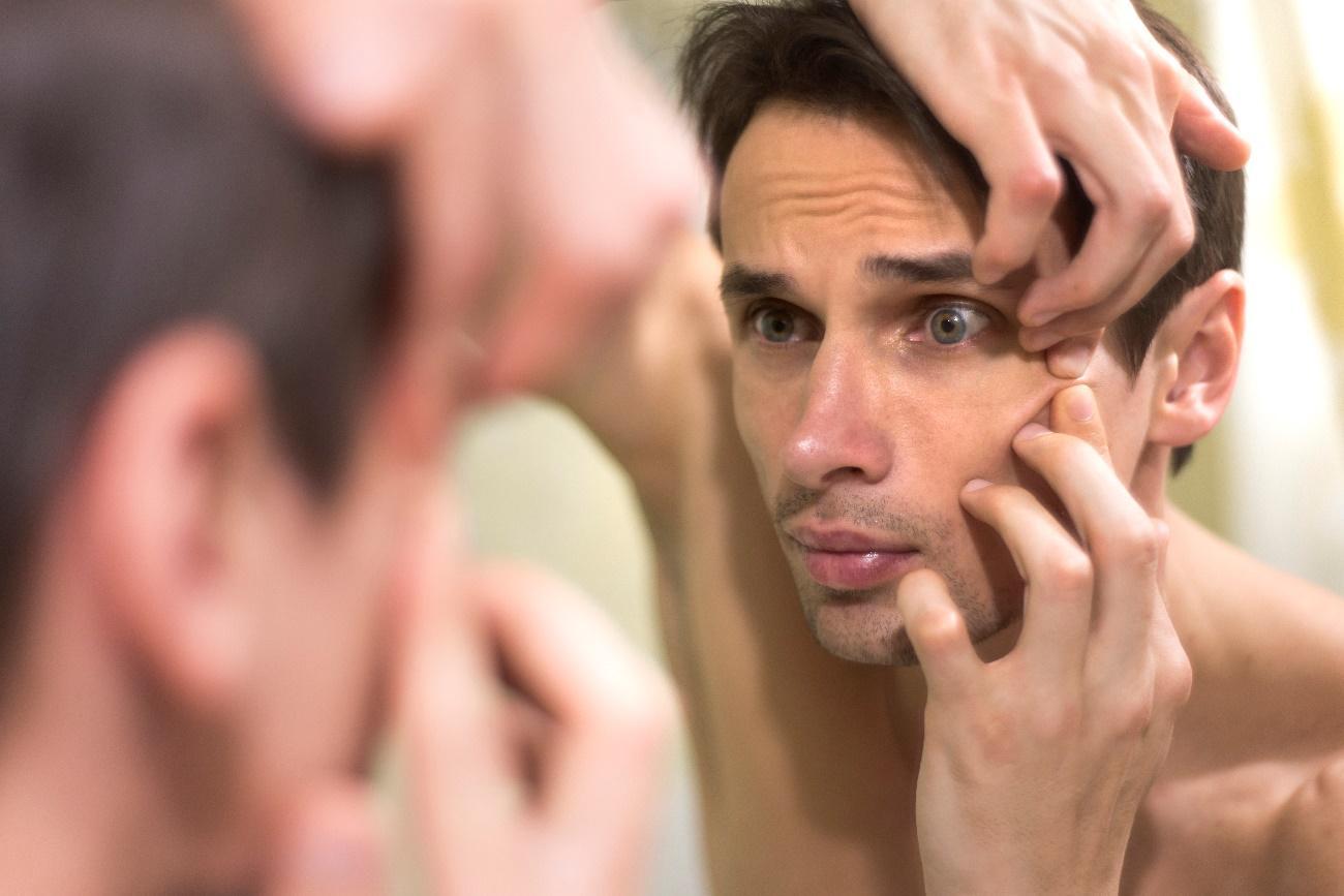 Óleo de coco para acne