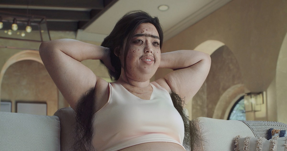 Belo Medical Group apologizes for 'insensitive and upsetting' #pandemiceffect ad