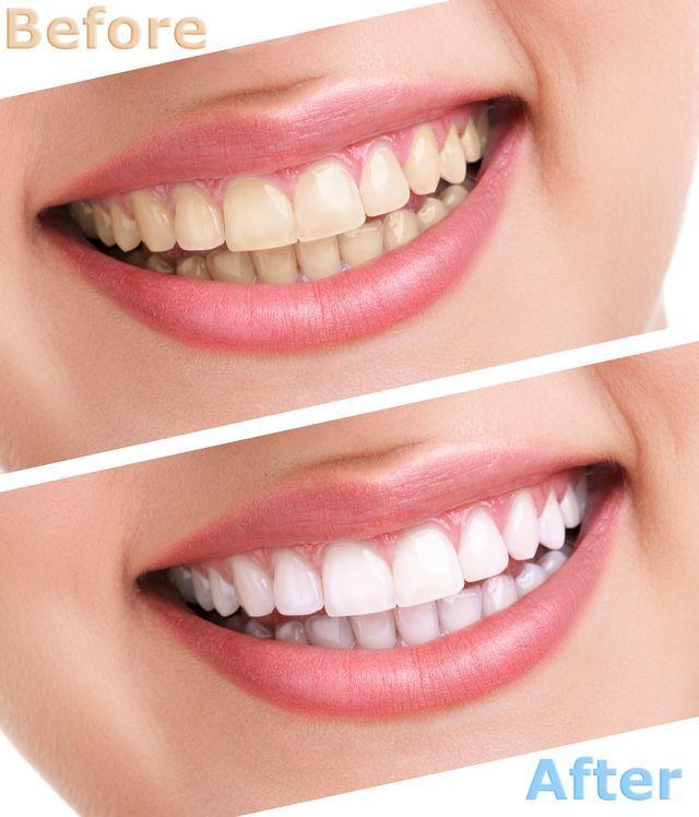 Tooth Whitening (Dental Bleaching) in Karachi
