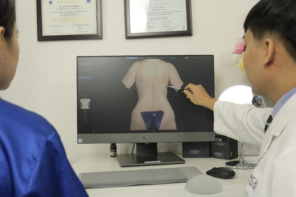 Lấy silicone lỏng và tái tạo mông