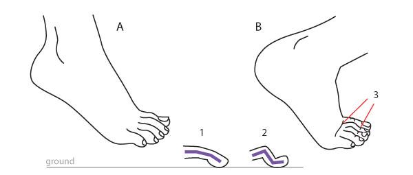 Toes in bent feet