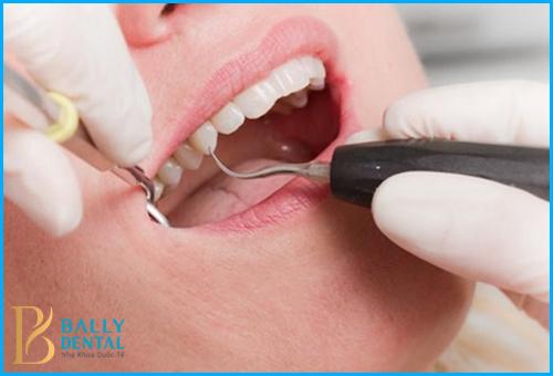 Lấy cao răng bằng máy siêu âm có đau không thưa Bác sỹ? 1