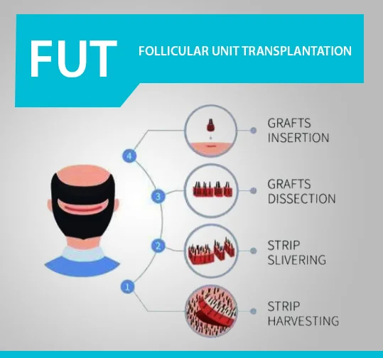 Best Hair Transplant, Trend Health