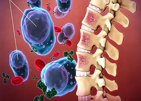 Cùng Bác sĩ Dược Sài Gòn tìm hiểu về bệnh viêm tủy xương - Ảnh 1