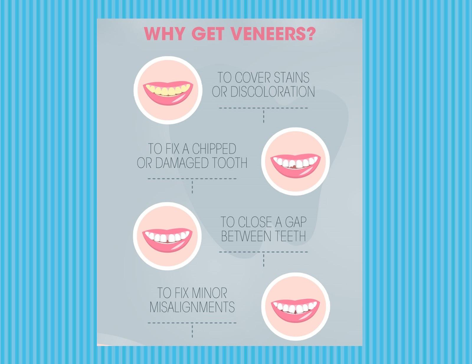 Why Get Veneers?