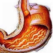 Повышенная кислотность желудка лечение