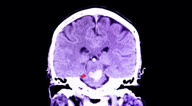 CT scan of the brain of a patient with intracranial hemorrhage