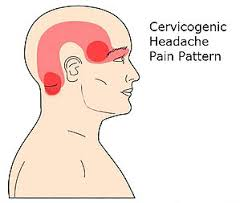 Headaches… we all get them… Cherie is here to educate us! | Post ...
