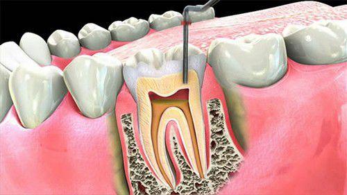 Bọc răng sứ có cần lấy tủy không - có đau lắm không? 1