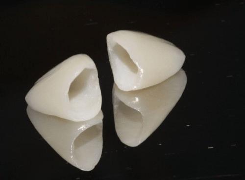 Bọc răng hàm - Cách điều trị răng hư hỏng TRIỆT ĐỂ mà AN TOÀN 1