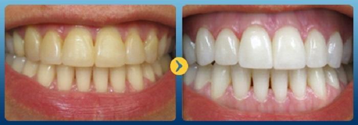 Tẩy trắng răng bằng chanh hiệu quả sau 2 phút TẠI NHÀ 1