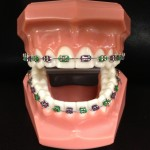 Traditional-Metal-Braces-cropped-150x150.jpg