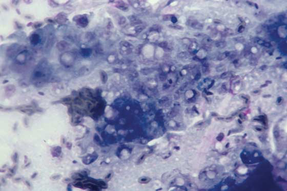 Impression smear of proliferative epidermis in poxvirus infection