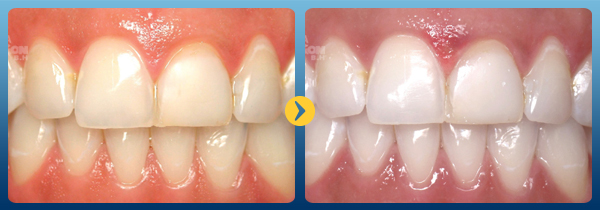 Cách làm trắng răng bằng húng quế Tại nhà Đơn Giản hiệu quả 1