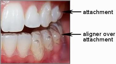 Image result for invisalign attachments