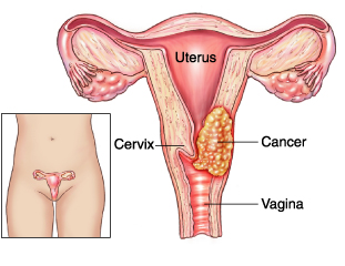 http://cancer-treatment-madurai.com/types-of-cancer-cervical-cancer.php