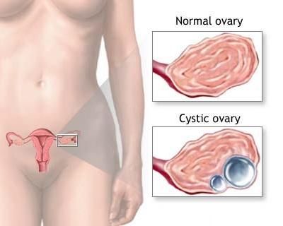 ovarian cyst pain.jpg
