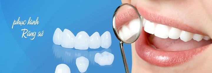 Răng sứ Cercon có tốt không — Ưu và nhược điểm