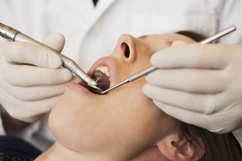 Lấy cao răng có tốt không? Ảnh hưởng của cạo vôi răng sai kỹ thuật