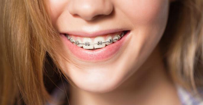 Những nguy hiểm khi niềng răng thất bại bạn cần biết