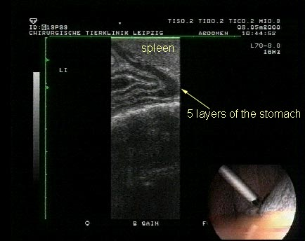 """Laparoscopic ultrasound of the stomach on the left side with spleen as an """"offset pad""""."""