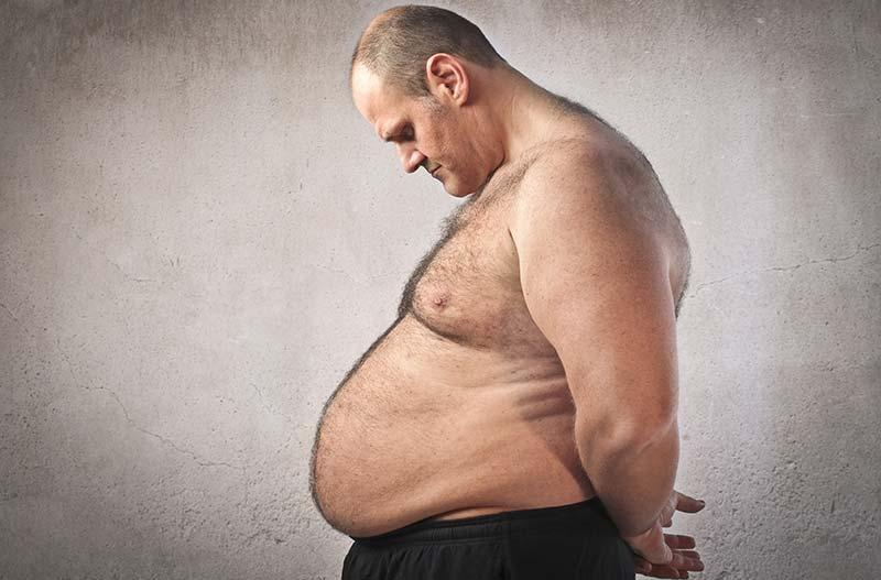 https://www.shimspine.com/wp-content/uploads/2015/05/obesity-surgery-complications.jpg