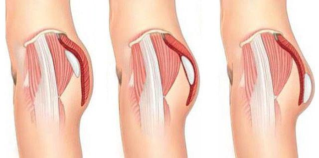 implantacija-jagodic.jpg