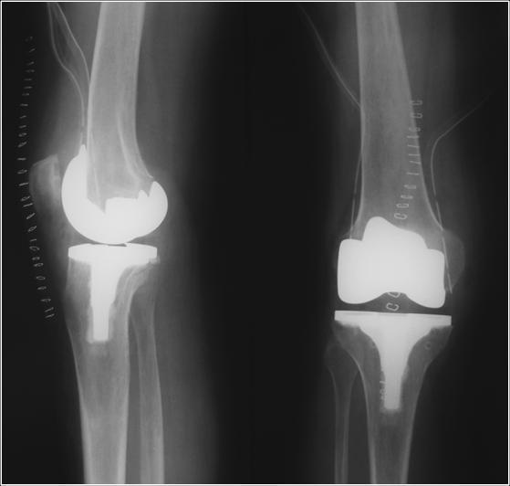Эндопротезы коленных суставов