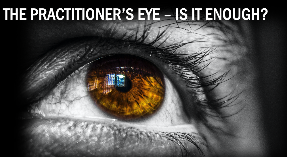 A close up of a persons eye  Description automatically generated