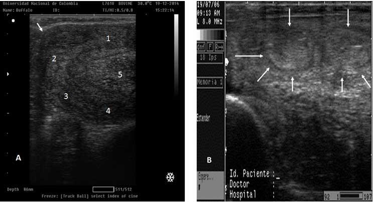 Figura 3A. Vista longitudinal del útero de una búfala no gestante, la flecha pequeña muestra la curvatura dorsal del útero. 3B imagen en sección transversal de un útero no gestante, las flechas muestran  secciones sagitales del cuerno uterino.