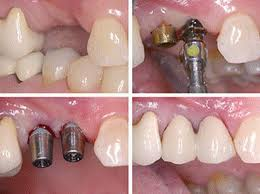 Dental-Implant-Supported-Bridge-at-Quintessence-Dental-Clinic-in-Bangalore.jpeg
