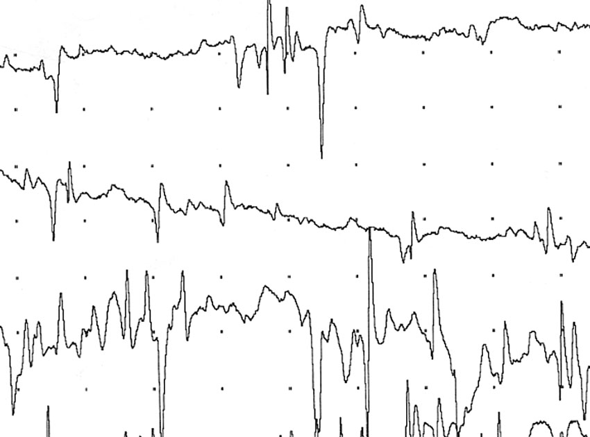 Fibrillation potentials and positive sharp waves from a denervated muscle 5 days after brachial trauma