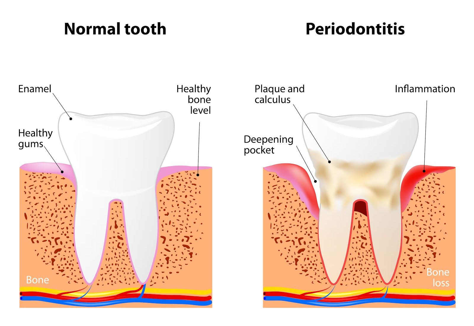 Revitalizing Smiles Gum Disease Diagram