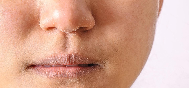 Các mạch máu dưới da không được lưu thông dễ dàng sẽ dẫn tới tình trạng da khô và nứt nẻ