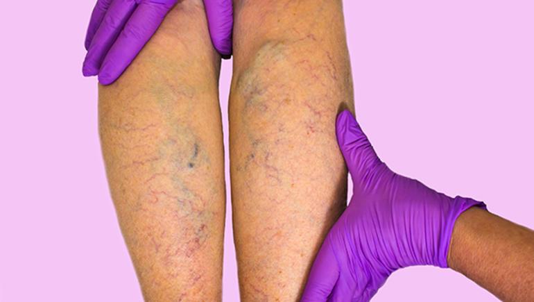 Varis tedavisinde gelinen son nokta: Venablock