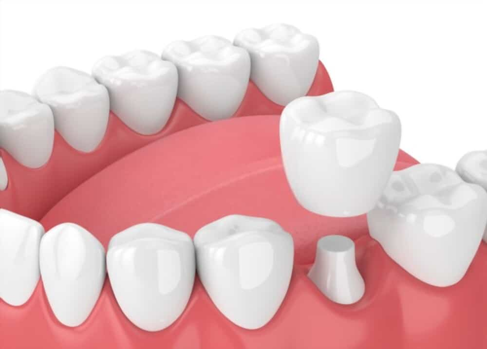 Dental crown is placed on broken and worn out teeth.