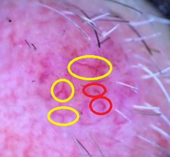 nevus dérmico dermatoscopia