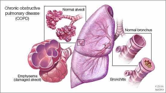 vi-sao-COPD-nguy-hiem-Wellbeing