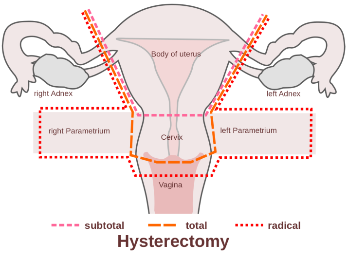 C:\Users\1\Desktop\1280px-Scheme_hysterectomy-en.svg.png