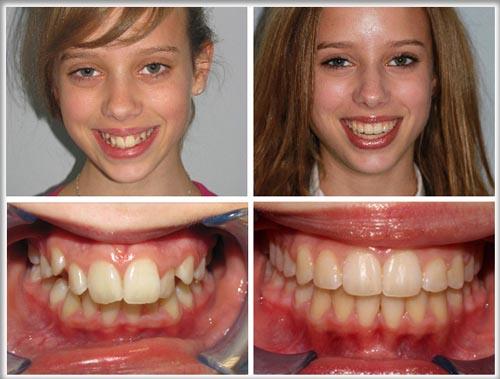 Niềng răng không mắc cài Clear Aligner và niềng răng Invisalign 1