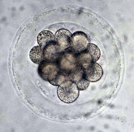 A bovine embryo with about 16 cells, as it would appear in the uterus of a cow about 4 to 5 days after ovulation. The diameter of this embryo (about 0.15 mm) has likely changed little from that immediately after fertilization. (Courtesy of Harold Hafs).