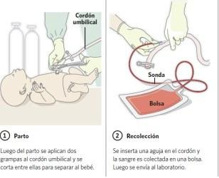 https://i0.wp.com/comadronaenlaola.com/wp-content/uploads/2018/11/obtiene-sangre-cordon-umbilical_clafil20120731_0002.jpg?resize=308%2C250