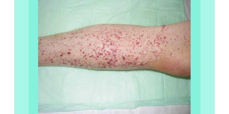 Image result for idiopathic thrombocytopenic purpura