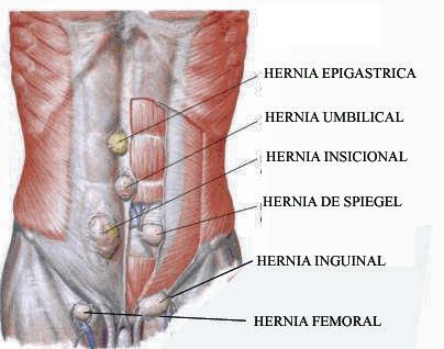 Fisioterapia en cirugías abdominales : Cirugías abdominales