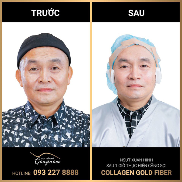 Sao hạng A cũng phải 'mê mệt' căng chỉ Collagen Gold Fiber - Ảnh 3