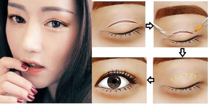 Cắt mắt 2 mí Hàn Quốc: Mắt đẹp long lanh - Ảnh 2