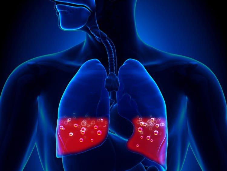 Phù phổi cấp do tim