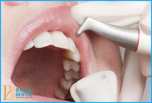 Lấy cao răng siêu âm có những ưu điểm gì? – Nha Khoa Bally 1