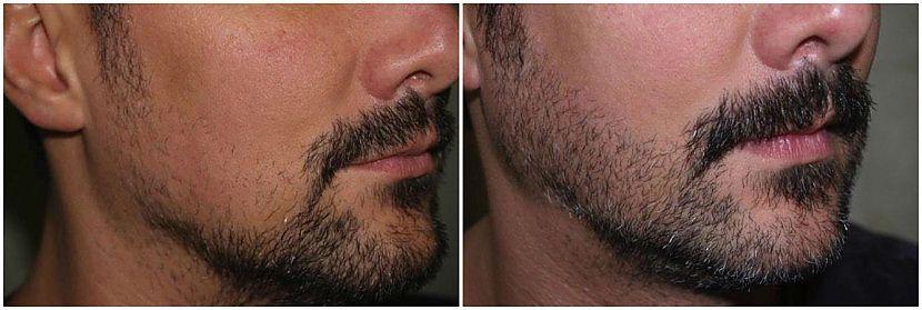 Миноксидил для бороды результат до и после