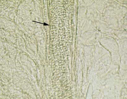 Sheet of arthroconidia (arrow) revealed after treatment of a skin scraping with 10% KOH. This diagnostic method for ringworm is commonly used by both mycologists and clinicians.